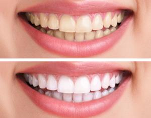 Munno Para Dental Clinic